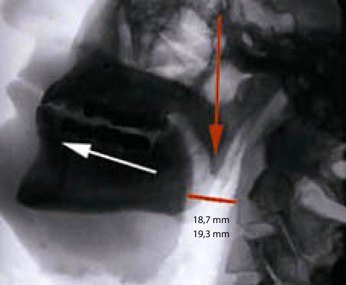 X-ray after placing SnorBan